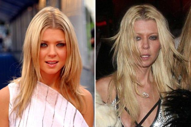 Tara Reid antes e depois das drogas.