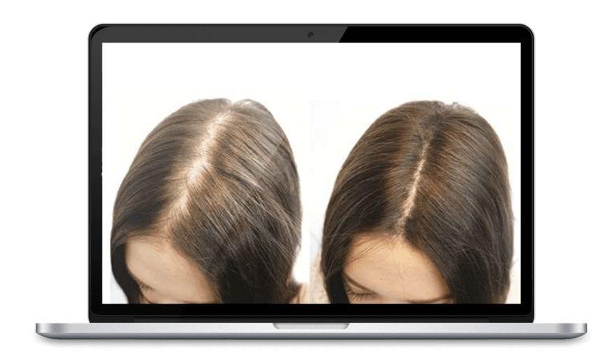 Queda de cabelo? Saiba causas e tratamentos