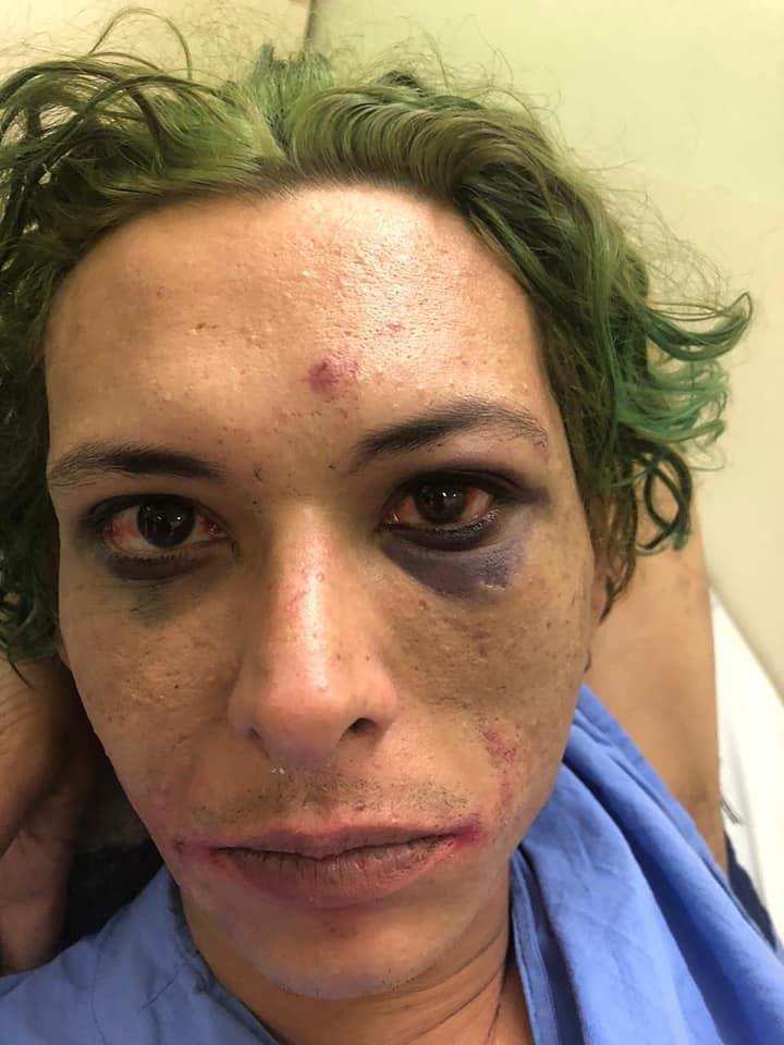 Cosplayer diz ter sido espancado e torturado por seguranças na BGS