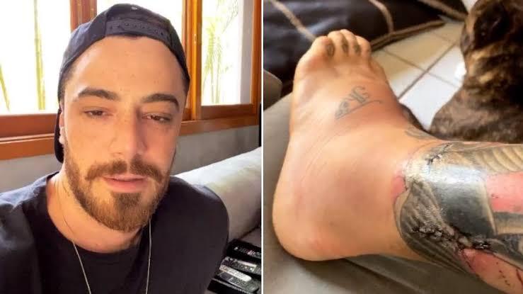 Felipe Titto: saiba o estado de saúde do ator após mordida de cão