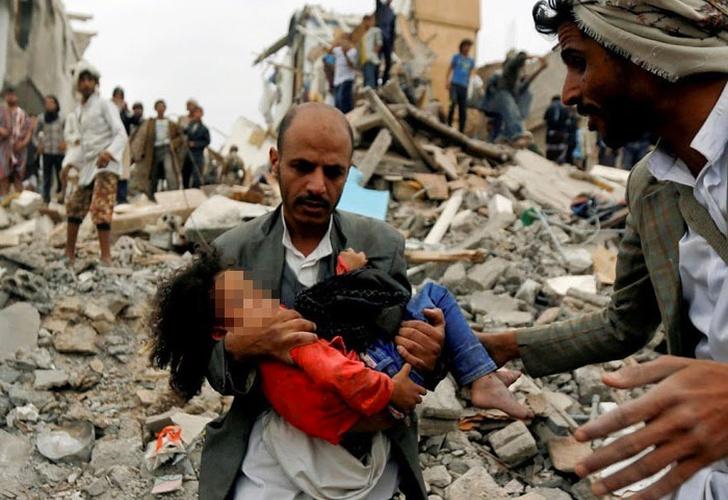 Civis atingidos por ataques aéreos no Iêmen