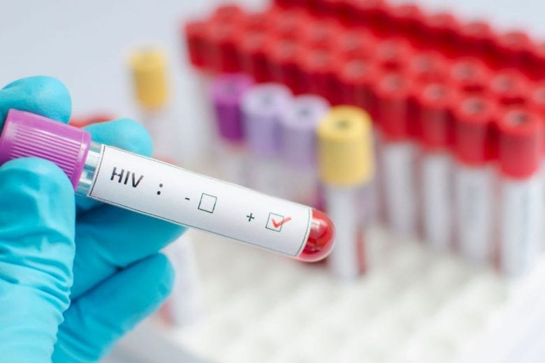cura para o HIV