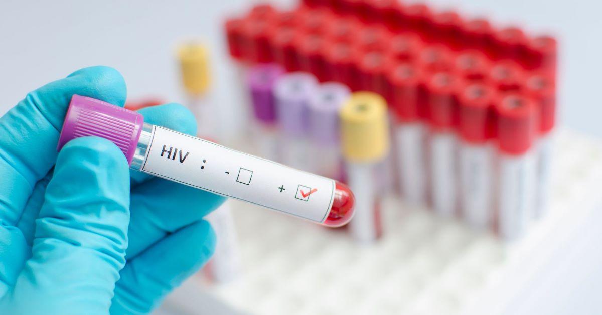 Tudo sobre a possível cura para o HIV descoberta no Brasil