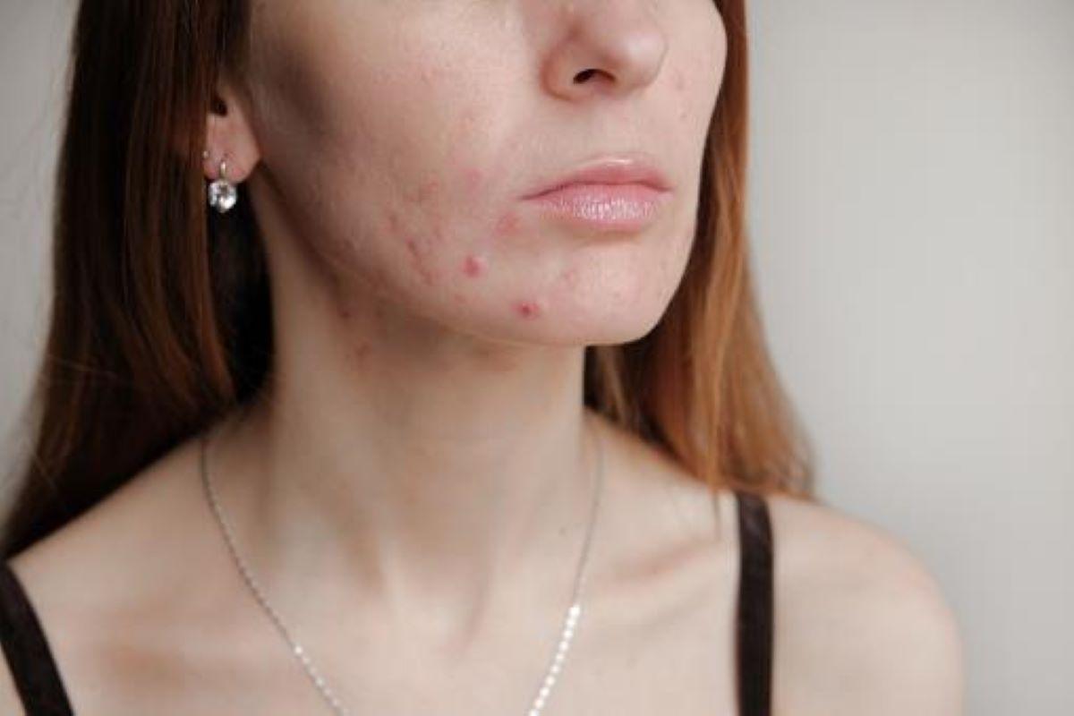 Maskne: acne causada pelo uso de máscara