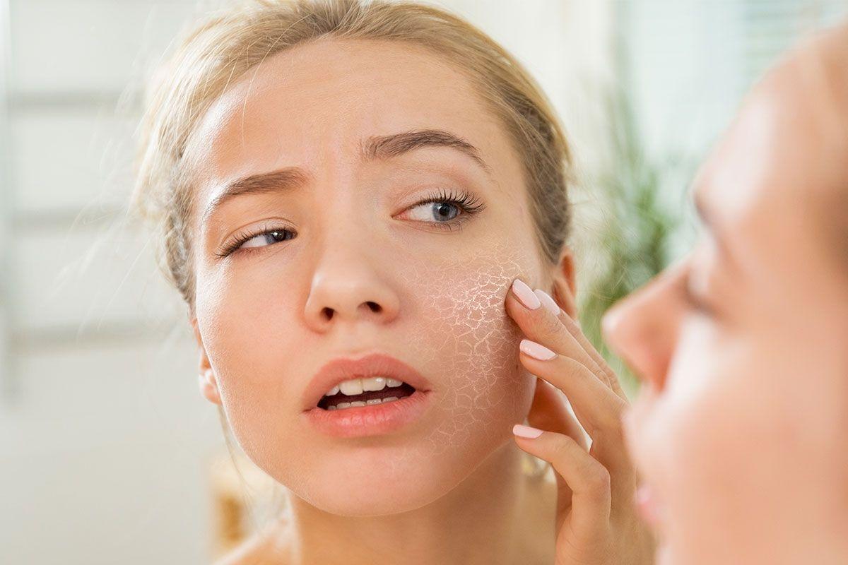 Confira algumas dicas sobre como cuidar de uma pele seca