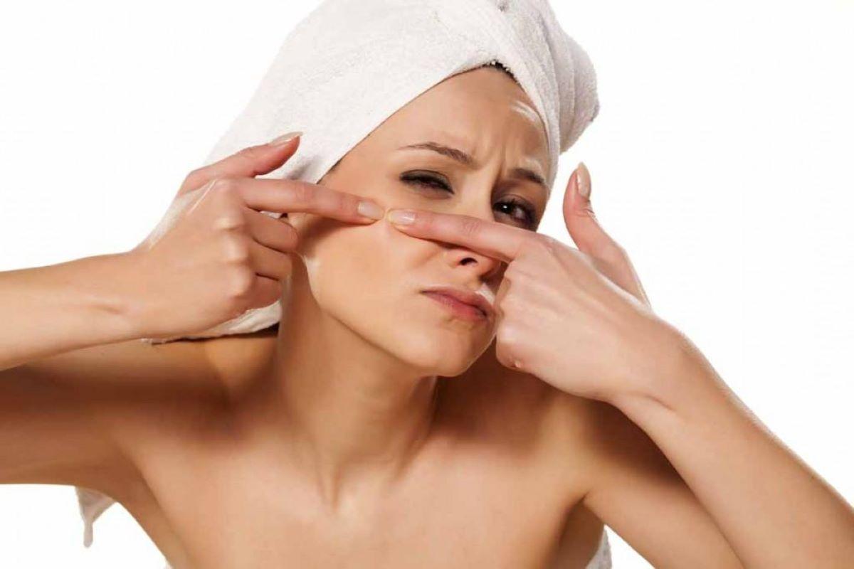 Como evitar o surgimento de cravos na pele?