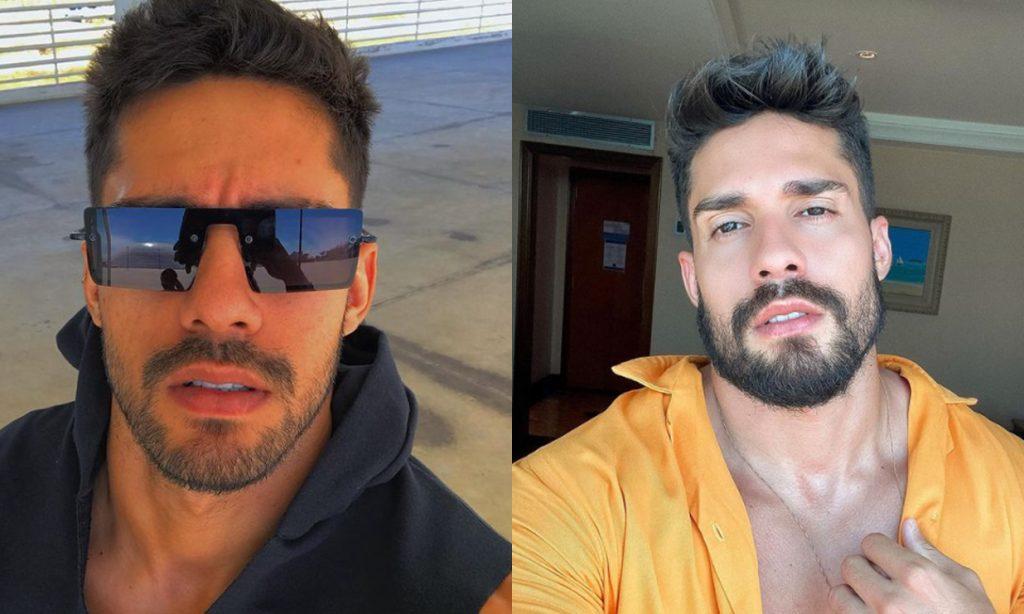 Confira o antes e depois do ex-BBB Arcrebiano realizar a harmonização facial.
