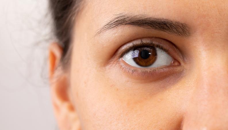 As olheiras são um problema na vida de muitas pessoas.