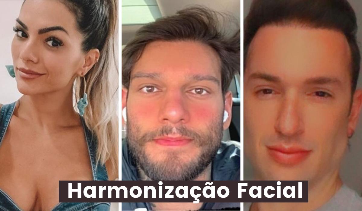 Harmonização Facial: Veja o antes e depois dos famosos